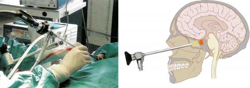 Operation der Hirnanhangdrüse (Hypophyse) durch die Nase mittels Endoskop