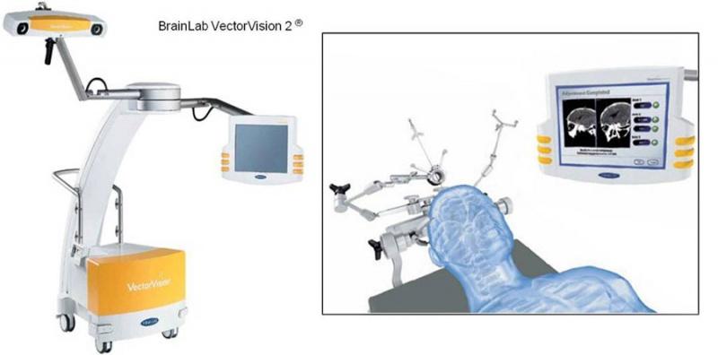 Mit Hilfe der Neuro-Navigation gelingt die präzise und schonende OP-Planung