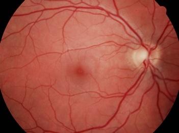 Abb.1: Normaler Augenhintergrund