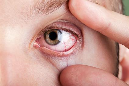 Trockene Augen, gerötete Augen und Augenbrennen